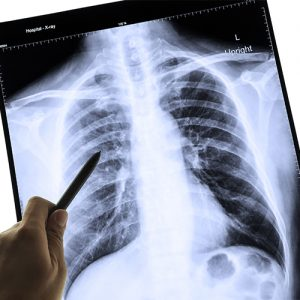 Respiratory Illnesses - Worksite Medical