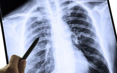 Don't Overlook These Other Occupational Respiratory Illnesses