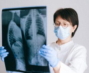 Sarcoidosis - medical professional checking on lung xray