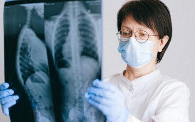 Sarcoidosis Linked to Silica, Beryllium Exposure